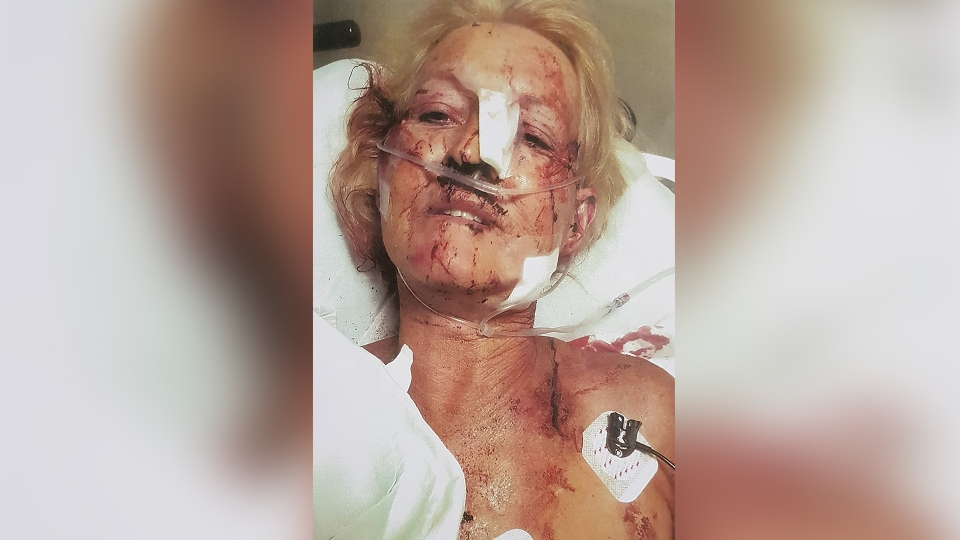 Karen Collins-Scheltgen is seen in hospital after being attacked in this image provided by the courts.