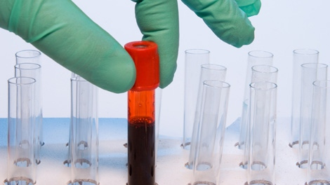 A blood sample is shown in this file photo.