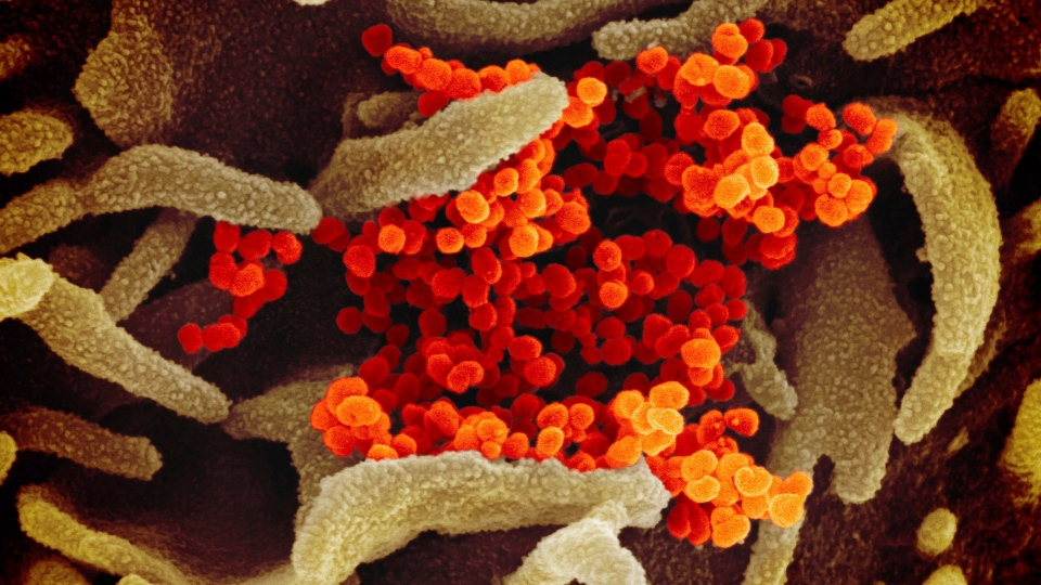 This undated electron microscope image made available by the U.S. National Institutes of Health in February 2020 shows the Novel Coronavirus SARS-CoV-2, orange, emerging from the surface of cells, green, cultured in the lab. Also known as 2019-nCoV, the virus causes COVID-19. The sample was isolated from a patient in the U.S. (NIAID-RML via AP)