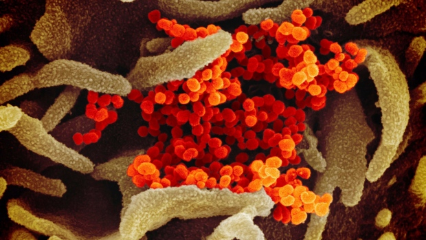 This undated electron microscope image made available by the U.S. National Institutes of Health in February 2020 shows the Novel Coronavirus SARS-CoV-2, orange, emerging from the surface of cells, green, cultured in the lab. (NIAID-RML via AP)