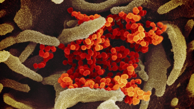 This undated electron microscope image made available by the U.S. National Institutes of Health in February 2020 shows the Novel Coronavirus SARS-CoV-2, orange, emerging from the surface of cells, green, cultured in the lab. (THE CANADIAN PRESS/HO - NIAID-RML via AP)