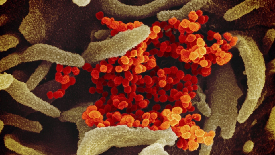 This undated electron microscope image made available by the U.S. National Institutes of Health in February 2020 shows the Novel Coronavirus SARS-CoV-2, orange, emerging from the surface of cells, green, cultured in the lab. The Alberta government says it is now dealing with a second presumptive case of the novel coronavirus and is ramping up testing protocols. THE CANADIAN PRESS/HO - NIAID-RML via AP