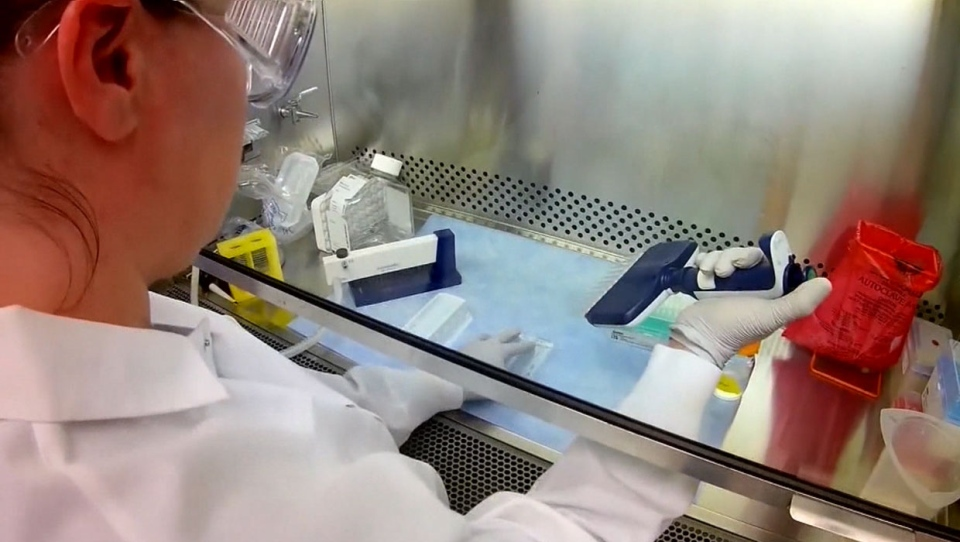 coronavirus, covid-19, calgary, cases, online asse