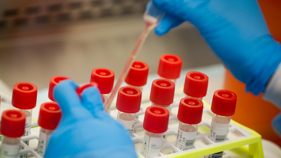 A technician prepares COVID-19 coronavirus patient samples for testing at a laboratory in New York's Long Island on Wednesday, March 11, 2020. (AP / John Minchillo)