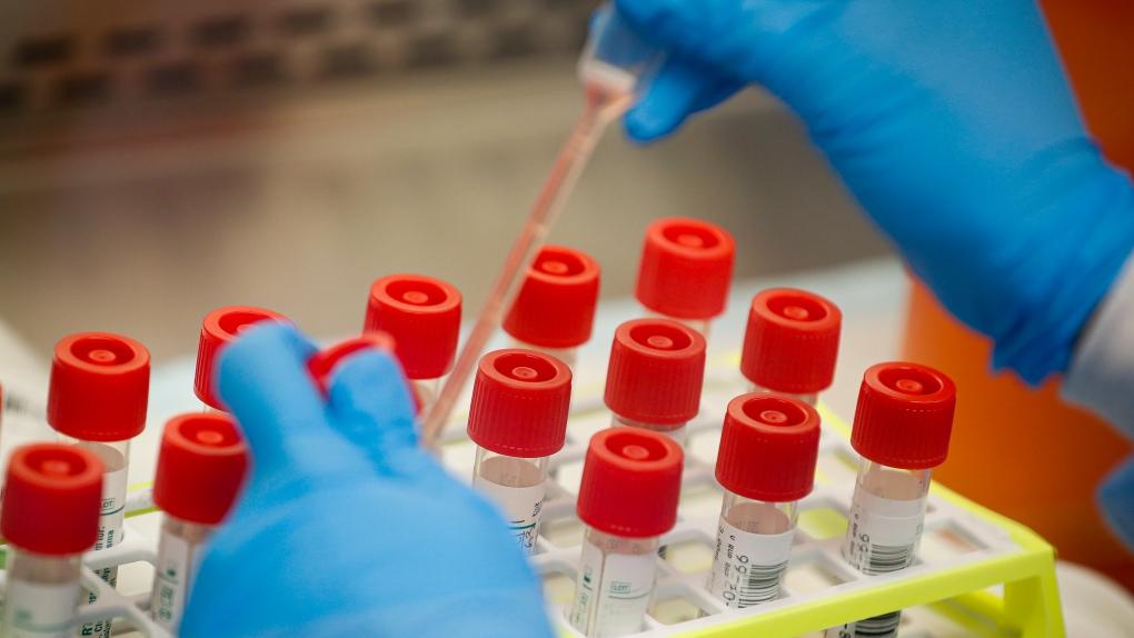 COVID-19 coronavirus test