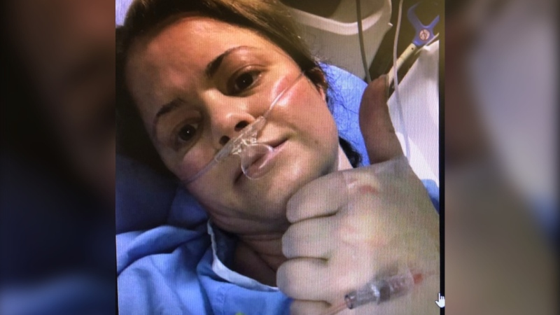 Erin Calver in her hospital bed in Calgary where she is recovering from COVID-19. (Submitted)