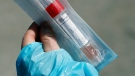 A healthcare worker shows a package with items used for testing people for COVID-19. (AP Photo/Carlos Osorio)
