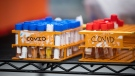 Specimens to be tested for COVID-19 are seen at LifeLabs after being logged upon receipt at the company's lab, in Surrey, B.C., on Thursday, March 26, 2020. LifeLabs is Canada's largest private provider of diagnostic testing for health care. THE CANADIAN PRESS/Darryl Dyck