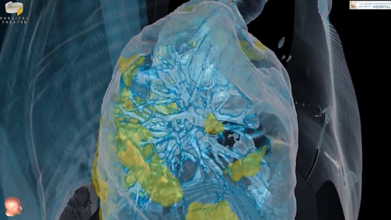 CT imaging from George Washington University Hospital shows the effects of COVID-19 on the lungs of a 59-year old man. (Credit: George Washington University Hospital)
