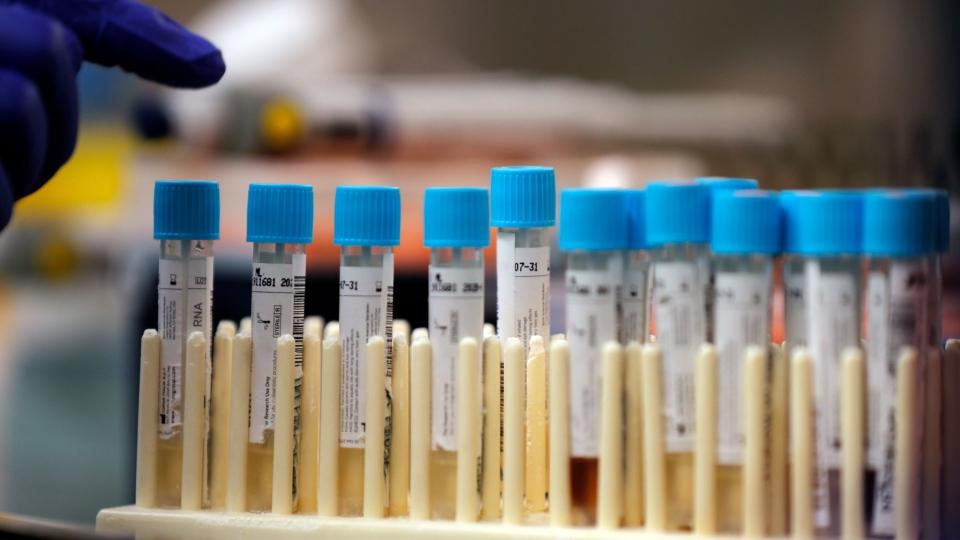 Lab vaccine