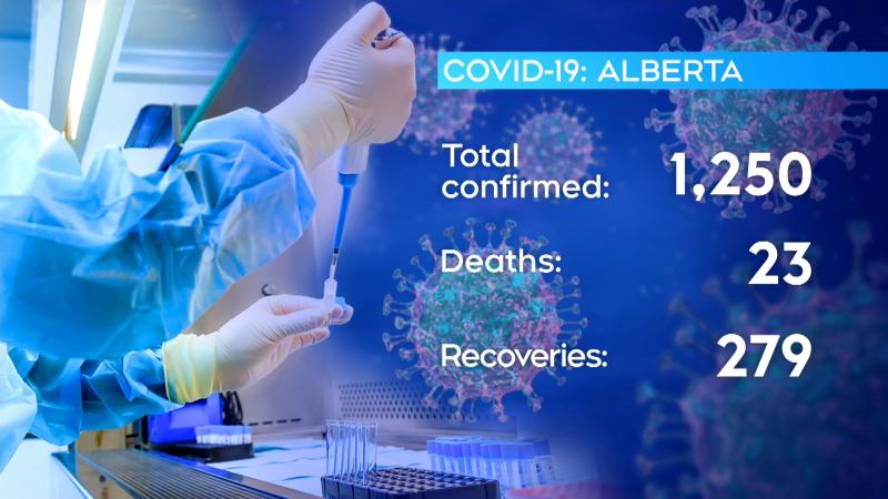 April 5 Alberta COVID-19 numbers