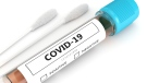 COVID-19 test generic