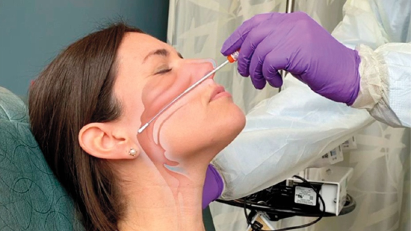 This artist's rendering shows a patient undergoing a swab for a COVID-19 diagnostic test. (Source: The New England Journal of Medicine ©2020)