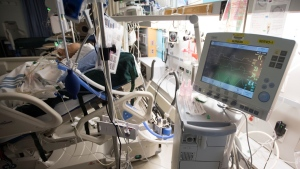 A patient is attached to a ventilator in the COVID-19 intensive care unit at St. Paul's hospital in downtown Vancouver, Tuesday, April 21, 2020. (Jonathan Hayward / THE CANADIAN PRESS)