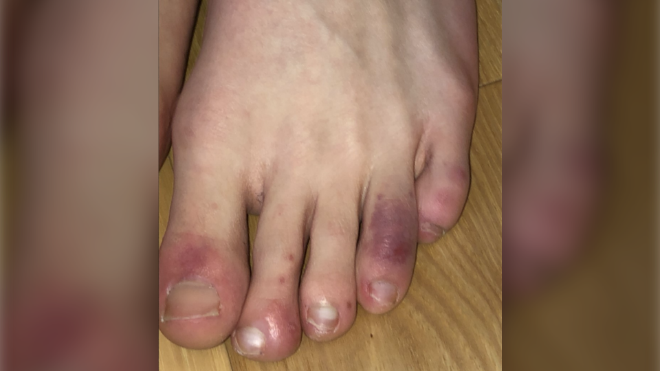 example of covid toes