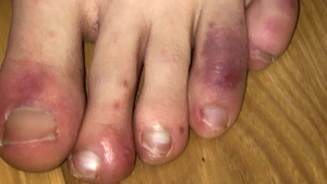 "A new study has found evidence supporting a link between ""COVID toes"" and the novel coronavirus."