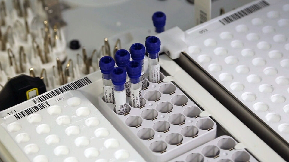 The Italian-made DiaSorin LIAISON test was approved by Health Canada on Tuesday. The system will be used in Canadian labs to determine if a blood sample contains COVID-19 antibodies. (DiaSorin)