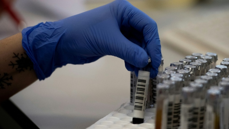 A scientists at the University of Toronto says his lab has created an engineered antibody for COVID-19 that he hopes will move right to clinical trials. (AFP)