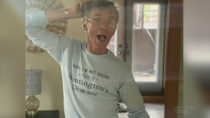 Man with Huntington's disease. (Alana Pickrell/CTV Northern Ontario)
