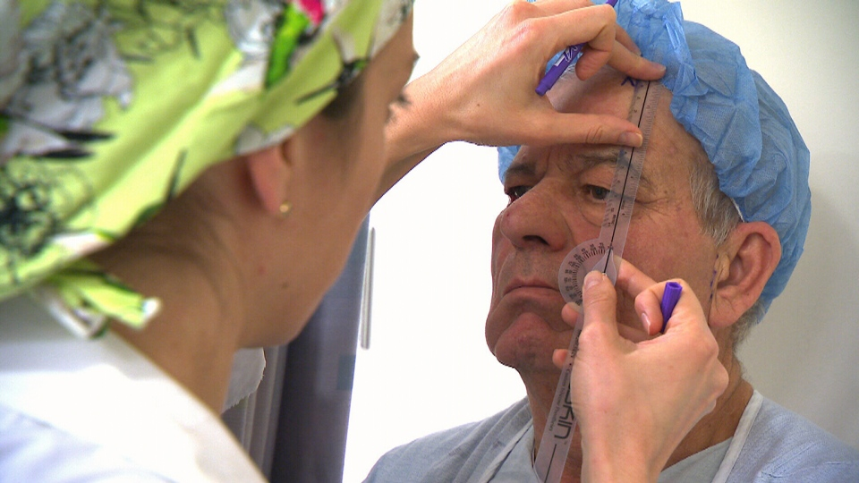 Luigi Quafisi is seen in this image as doctors prepare for his facial operation.