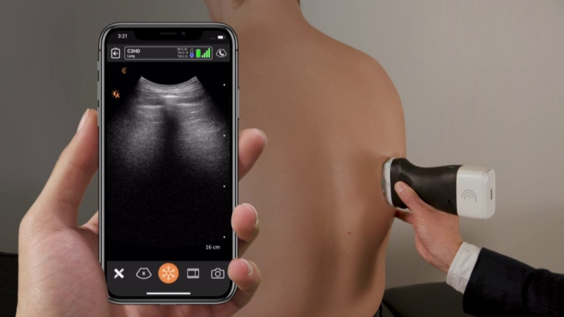 The scanners—called PoCUS, for point-of-care ultrasound— were designed and provided by Burnaby-based Clarius Mobile Health. (University of British Columbia)