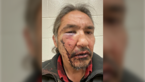 Chief Allan Adam of the Athabascan Chipewyan First Nation alleges these lacerations and bruises were the result of a beating from RCMP officers in Fort McMurray, Alta. (Supplied)