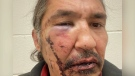 CTV National News: Alta. chief alleges assault