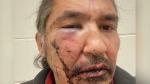 CTV National News: Alta. chief alleges assault