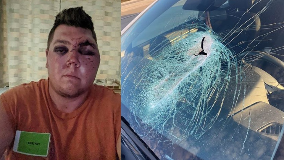 Cody Horvath was seriously injured when a piece of debris from the road went through his windshield. (Credit: Cody and Jaimee Horvath)