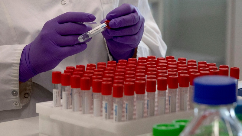 A lab technician looks puts a label on a test tube during research on COVID-19 on Wednesday, June 17, 2020. (AP Photo/Virginia Mayo)