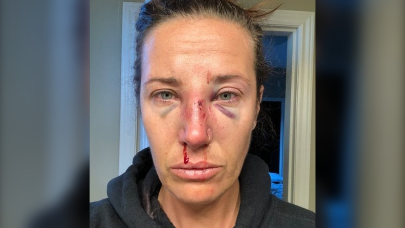Nanaimo resident Shanna Blanchard says she was punched in the face and placed in a spit hood that restricted her breathing during an RCMP wellness check in May. (Shanna Blanchard)