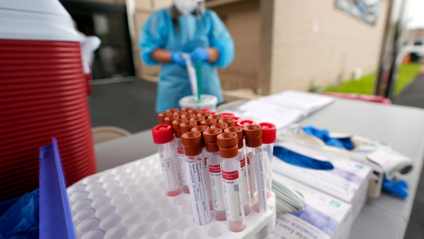 Test kits sit on a table as healthcare professional Kenzie Anderson prepares to take a sample at a United Memorial Medical Center COVID-19 testing site Friday, June 26, 2020. (The Canadian Press)