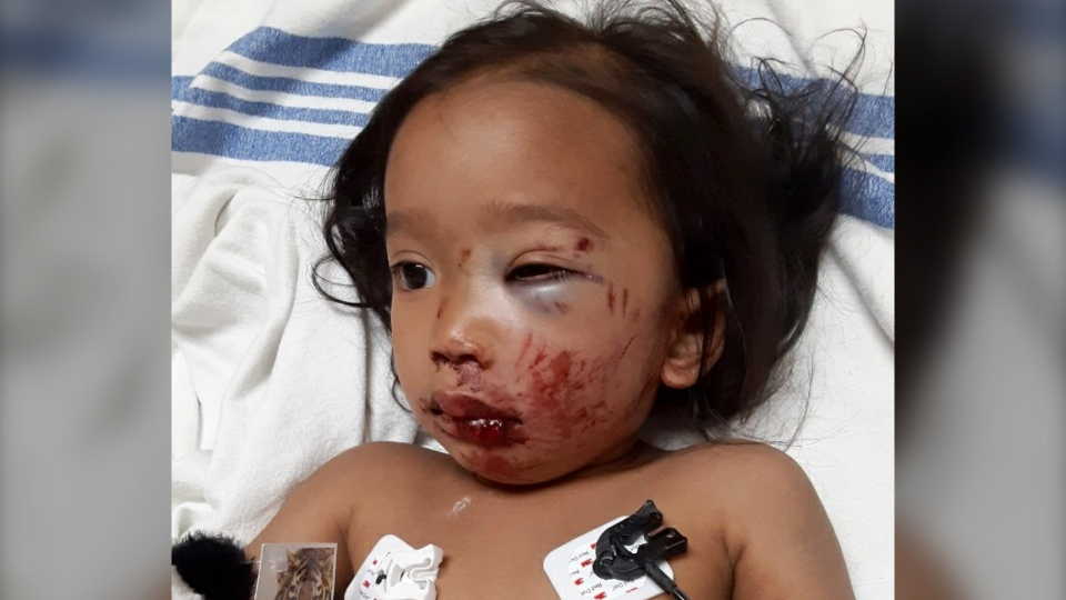 Kaylie Calgary injured toddler