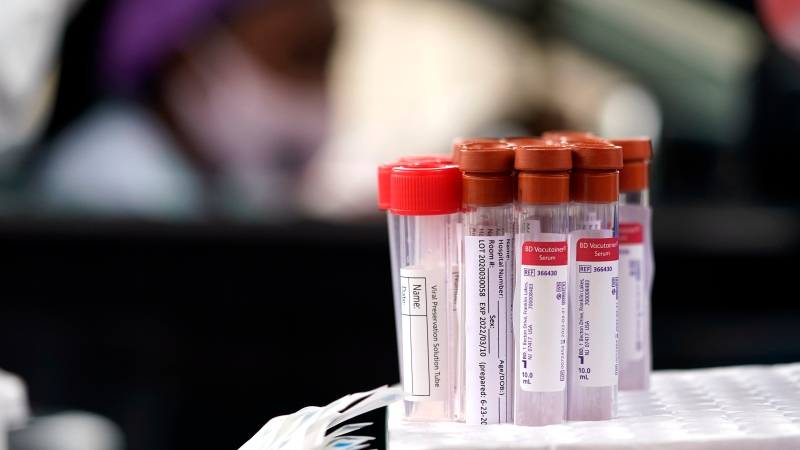 Test kits are shown at a United Memorial Medical Center COVID-19 testing site Friday, June 26, 2020, in Houston. (AP Photo/David J. Phillip)