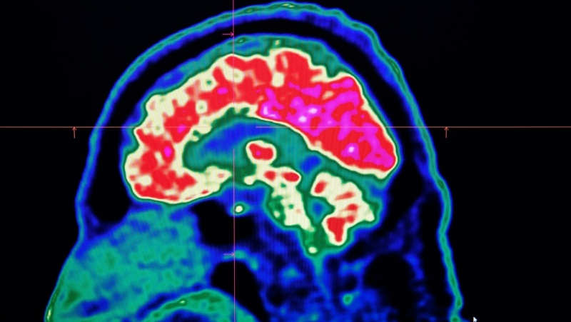 Severe COVID-19 infections are known to put patients at risk of neurological complications. (AFP)