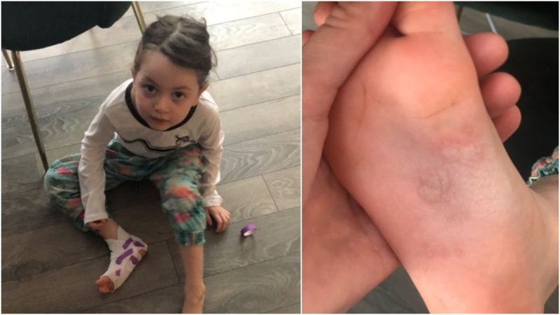 Eva, 5, burned her foot after walking on what appears to be small pieces of hot coal. (Provided by Karen Kininsberg)