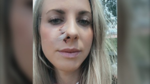 Erin McKenzie (pictured) is now recovering after the surprise encounter with the bear left her with a gash on her face and claw marks on her back. (Source: Erin McKenzie/Facebook)