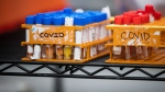 Specimens to be tested for COVID-19 are seen at LifeLabs in Surrey, B.C., on March 26, 2020. (Darryl Dyck / THE CANADIAN PRESS)