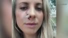 Hiker survives bear attack