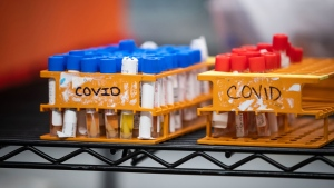 Specimens to be tested for COVID-19 are seen at LifeLabs after being logged upon receipt at the company's lab, in Surrey, B.C., on Thursday, March 26, 2020.