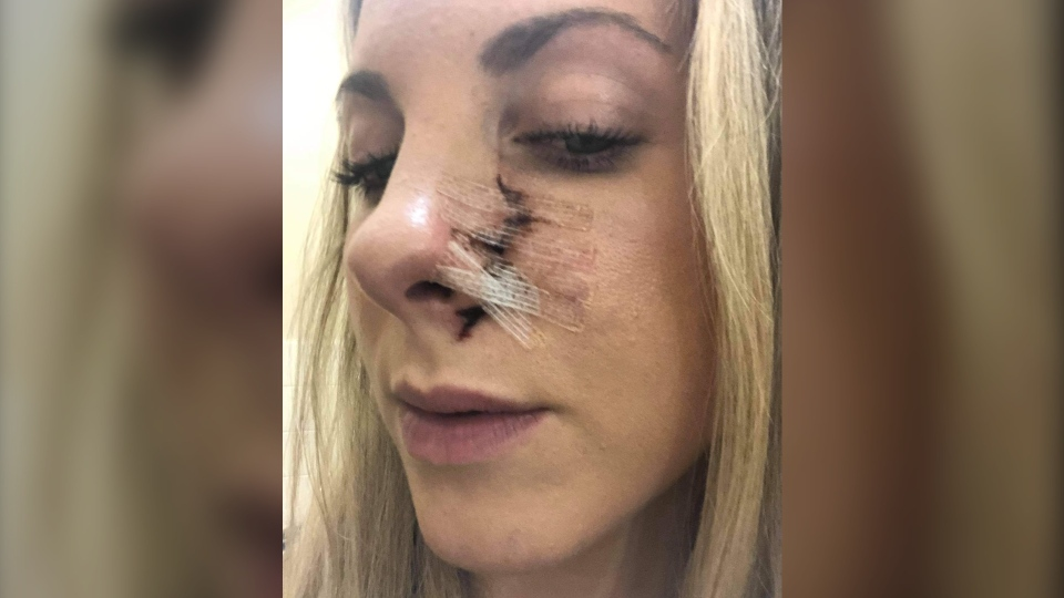 Erin McKenzie (pictured) is now recovering after the surprise encounter with the bear left her with a gash on her face and claw marks on her back. (Source: Erin McKenzie)