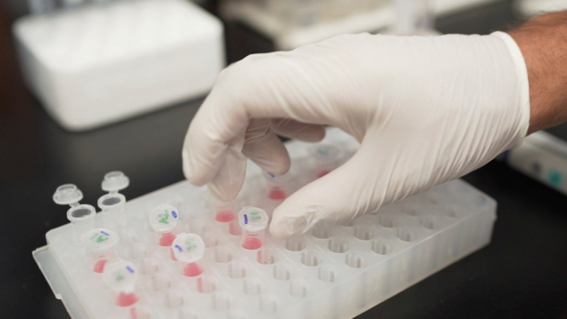 In this image from video provided by Washington University, Nicolas Barthelemy works on a p-tau217 test for Alzheimer's disease at a laboratory in St. Louis, Mo., on Monday, July 27, 2020. Several companies and universities have developed versions of these tests, which look for a form of tau protein, one of the substances that can build up and damage the brains of people with Alzheimer's. (Huy Mach/University of Washington via AP)