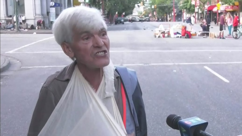 Senior citizen blames broke arm on police