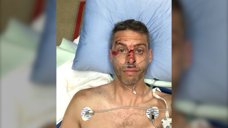 Cyclist Todd Nickel says he was hit by the long, wooden planks that jutted out from the back of a truck and over the shoulder of the Sea to Sky Highway Aug. 3, 2020.