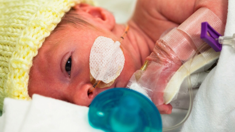CTV National News: Fewer premature babies
