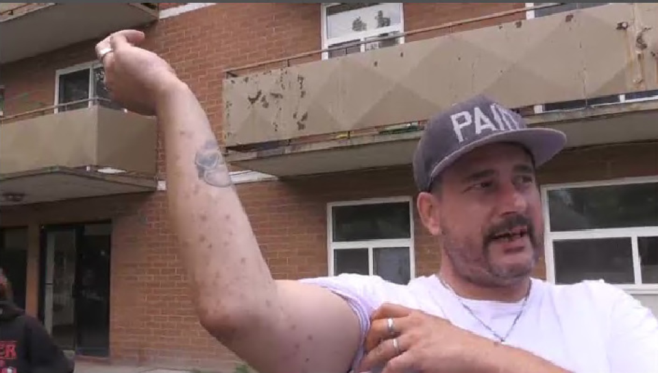 Shawn Willard shows bites on his arm he says are from an infestation of bed bugs and cockroaches in his apartment. (Stephanie Villella/CTV Kitchener) (Aug. 11, 2020)