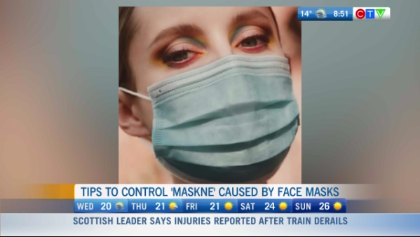 Maskne and how to prevent it