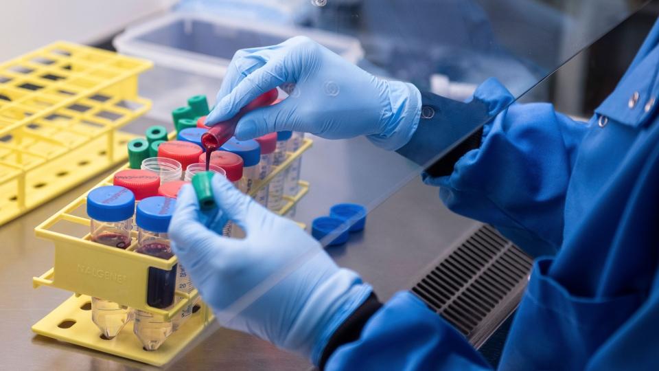 COVID-19 test vaccine
