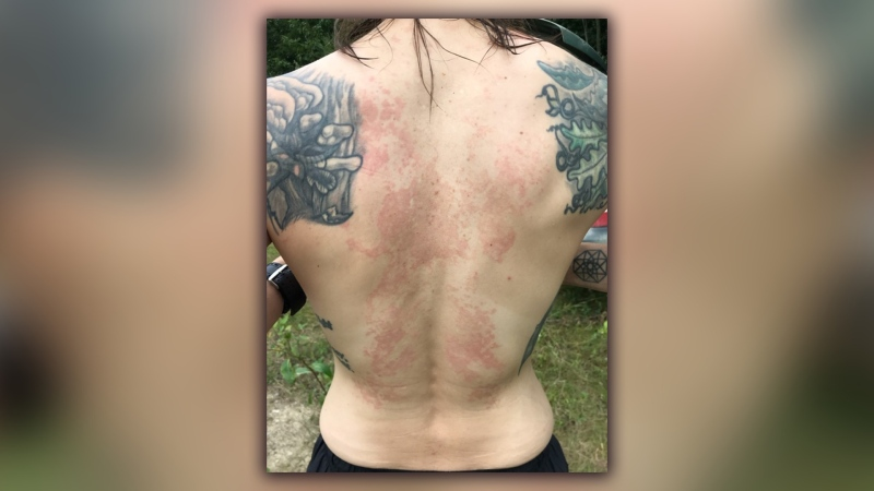 Terra Brie Stewart, 43, believes she contracted COVID-19 in March and has had long-lasting symptoms, including a rash. Sept. 3, 2020. (Supplied)