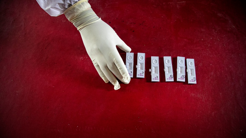 An Indian health worker takes nasal swab samples to test for COVID-19 in Gauhati, India, Sunday, Sept. 6, 2020. (AP Photo/Anupam Nath)